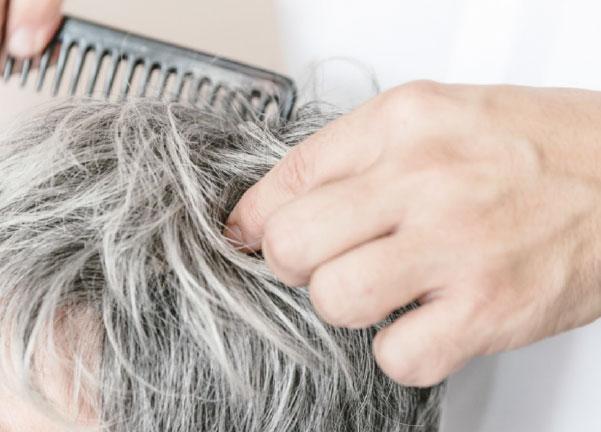 Vor Der Chemotherapie Haarersatz Und Zweithaar Schmerer